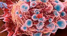 Sigara mesane ve böbrek kanserine de yol açıyor